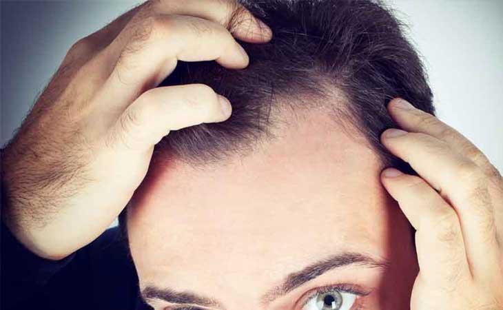 Anzeichen-einer-Glatze