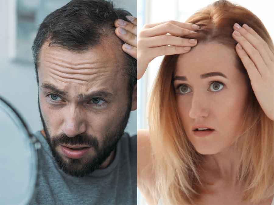 Haarausfall-Ursachen