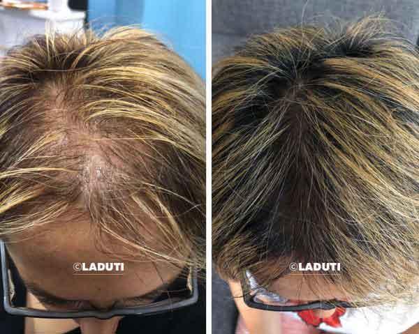 Haarwuchsmittel-Erfahrungen